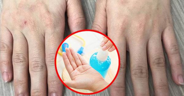 Lạm dụng nước rửa tay khô trong mùa dịch COVID-19: chuyên gia cảnh báo có thể gây tổn thương đến đôi tay